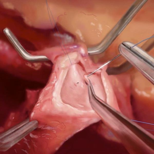 門脈合併切除後の血管吻合術