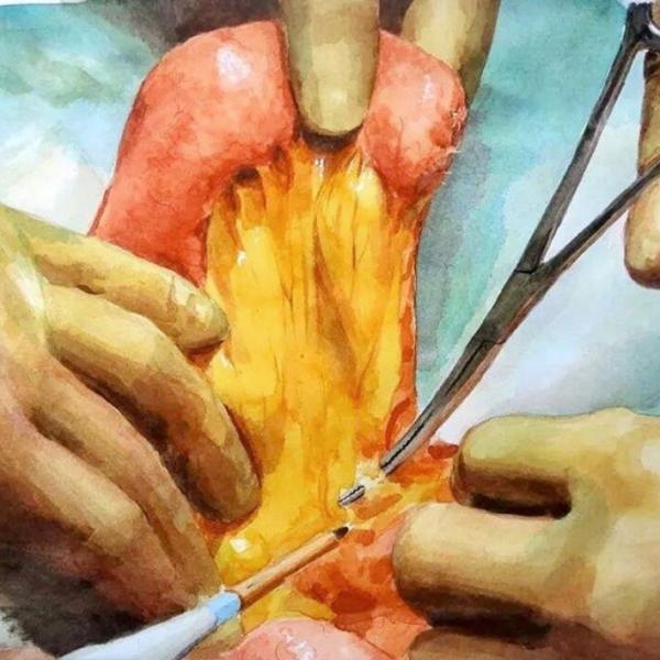 胃全摘後の空腸再建術