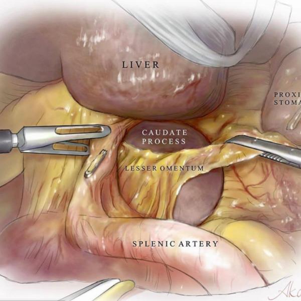 尾状葉切除術
