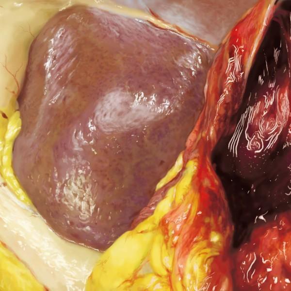 病理解剖のphoto real study