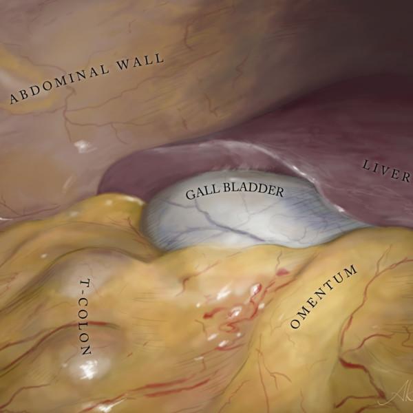 腹腔鏡下胆嚢的手術イラスト